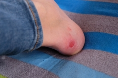 Die zusätzliche Belastung geht auch an ihren Füßen nicht spurlos vorüber