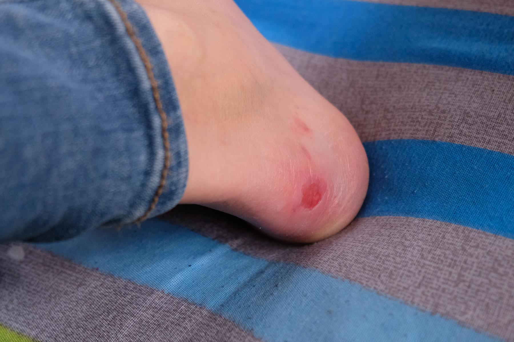 Ein Fuß mit einer Blase.