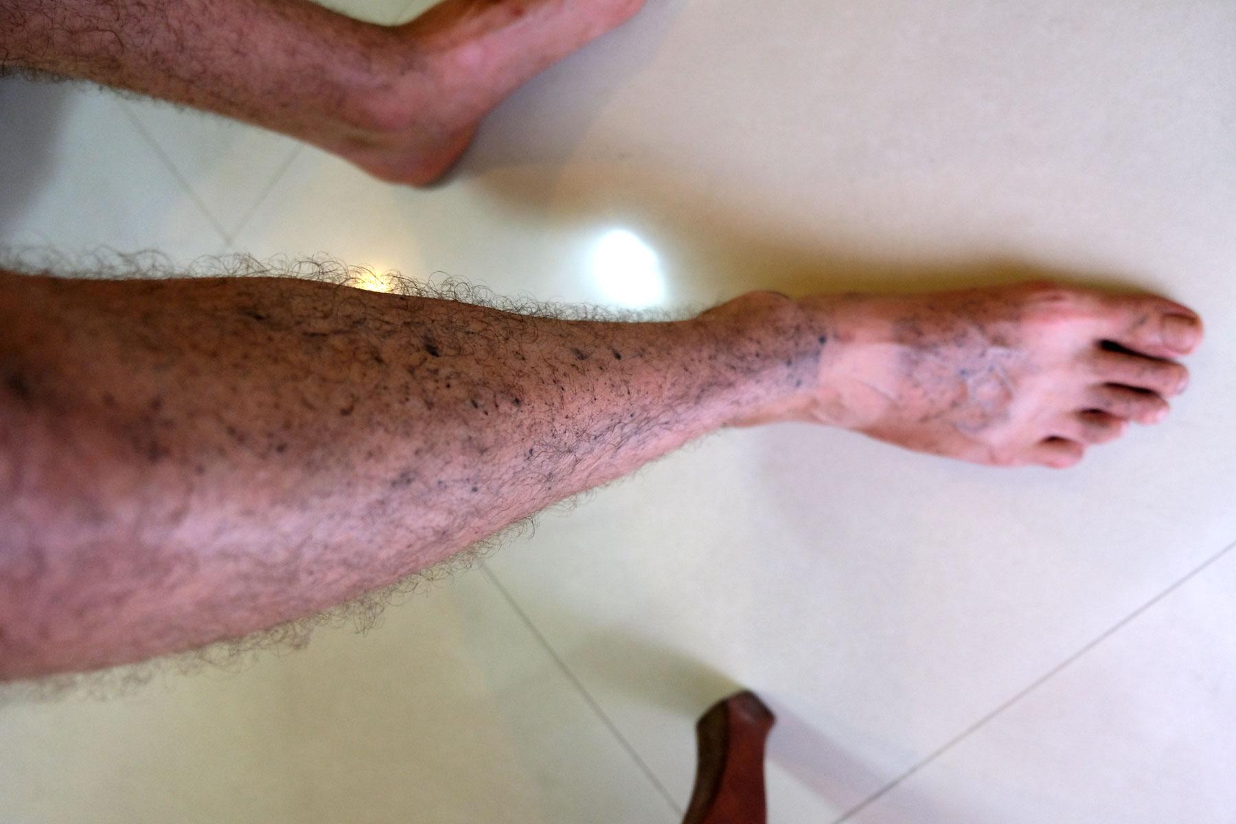 Sebastians Beine sind voller Kettenölspritzer.